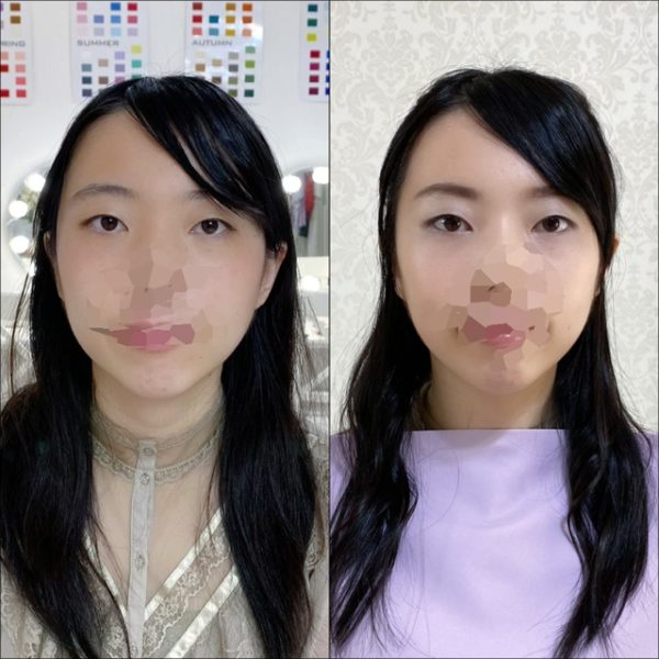 beforeafter